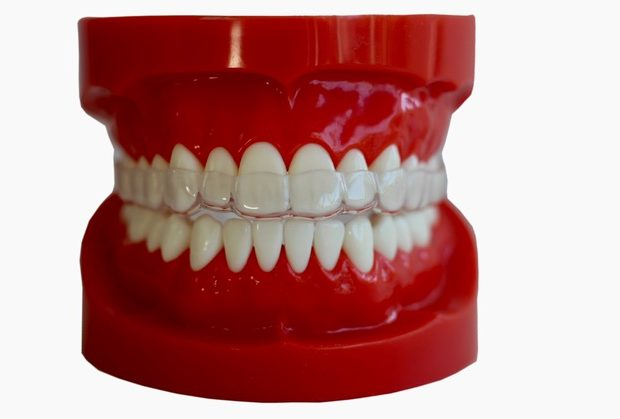 sentinel night guard for teeth grinding dual laminate