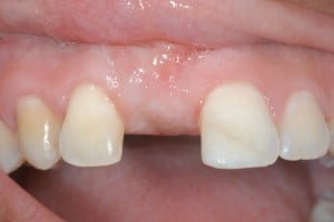 night guard for missing teeth