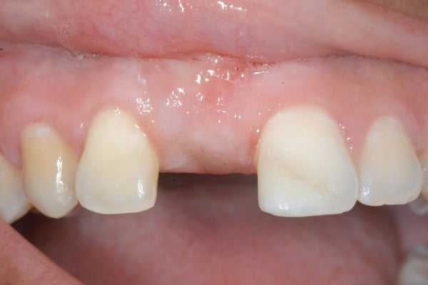 Finding The Right Night Guard For Missing Teeth