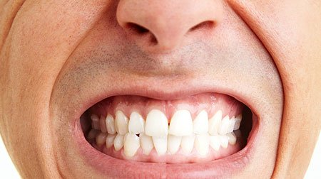 how do I stop clenching my teeth?