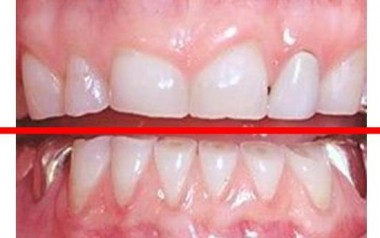 damaged teeth from grinding