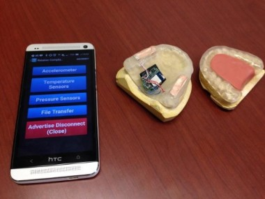 night guard with sensor to detect bruxism