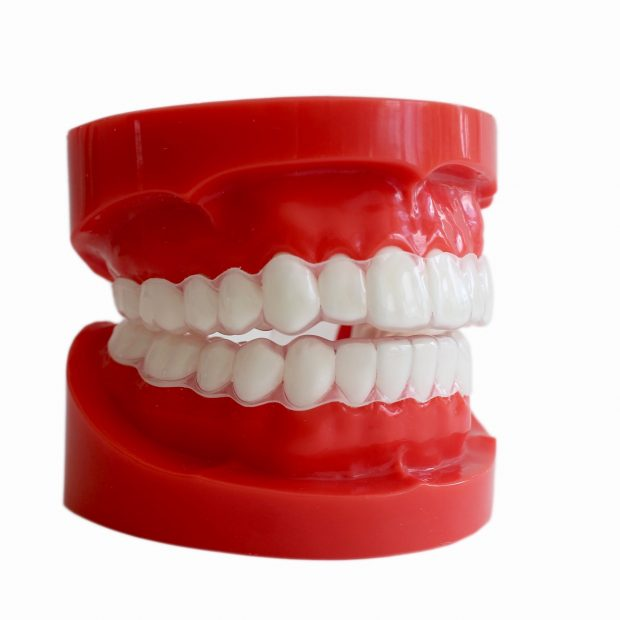 Soft Teeth Guards for Tongue Biting | Upper & Lower Guards ...