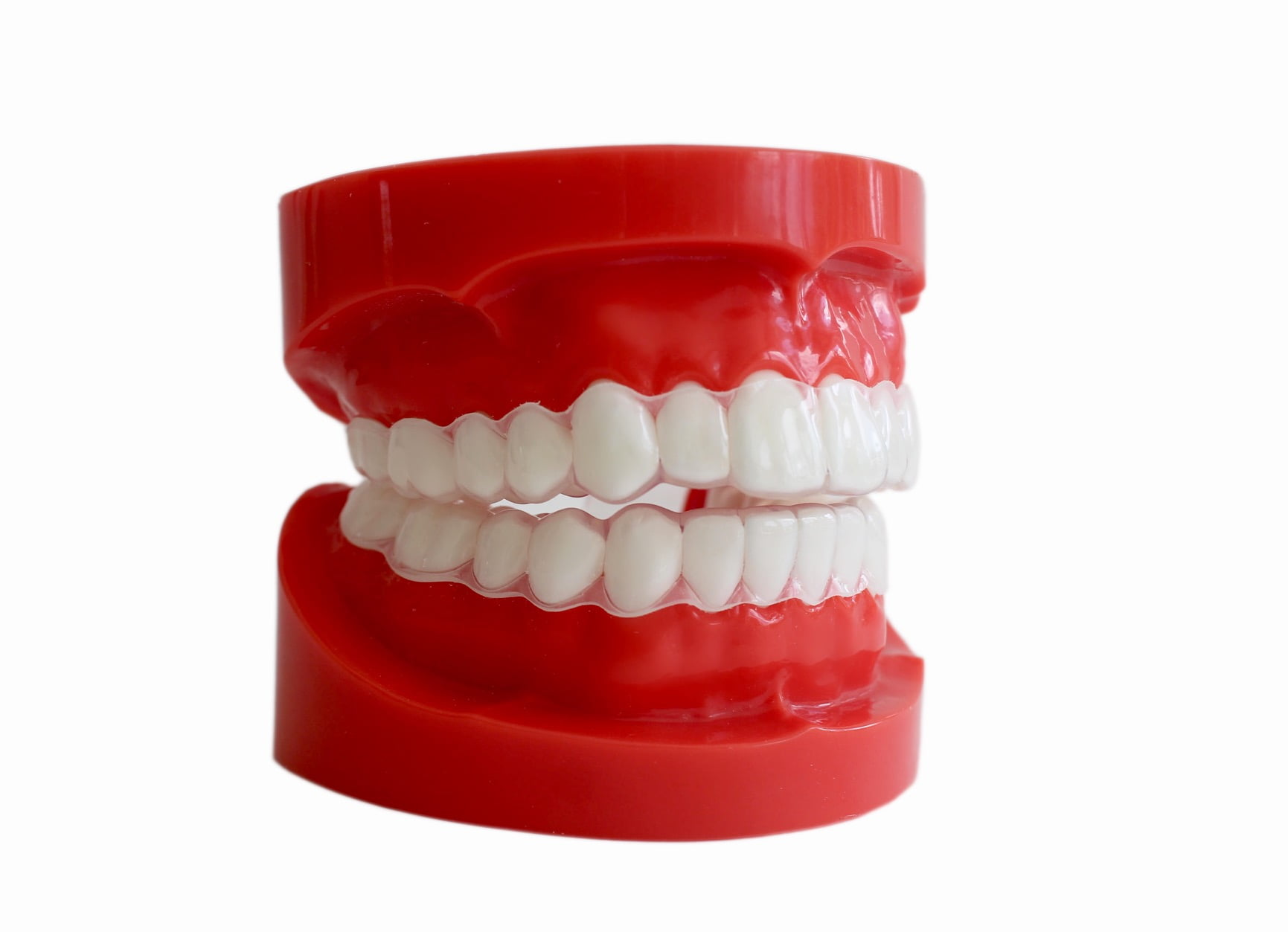 sentinel soft dental guards for tongue biting/cheek biting