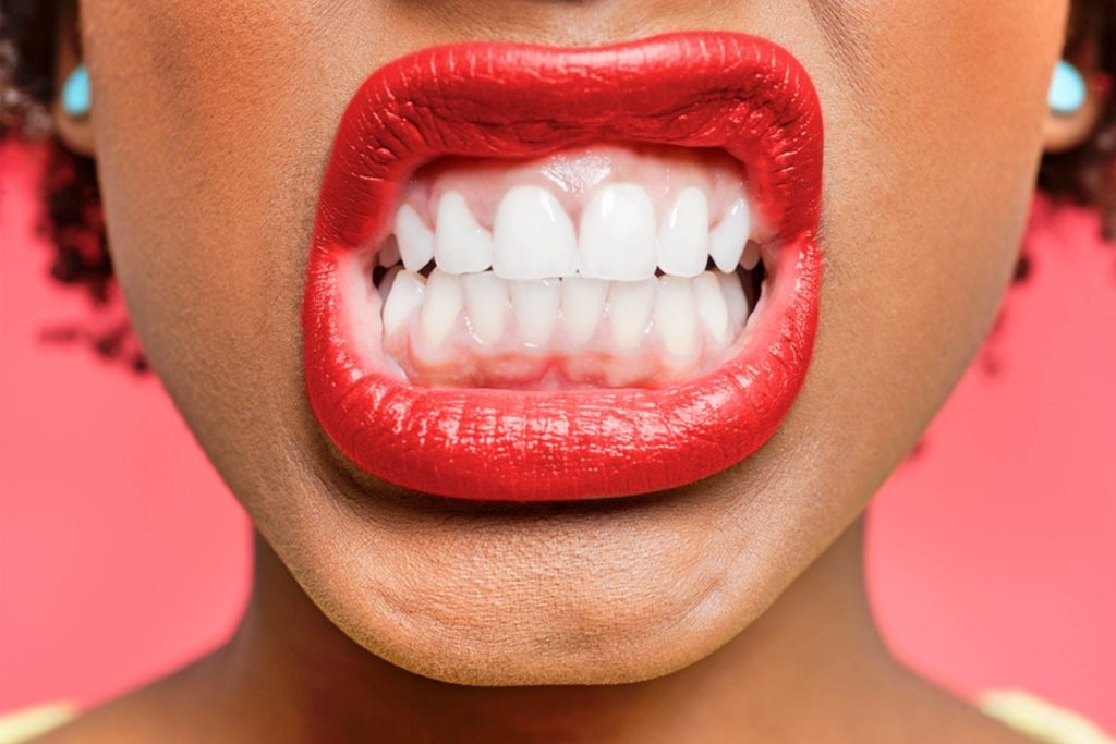 what is bruxism? sentinelmouthguards.com