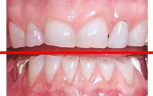 dental night guard thickness is measured here