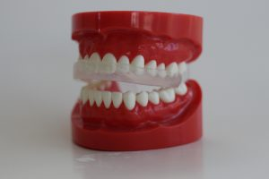 the fit of the dentek brand mouthguards from walmart