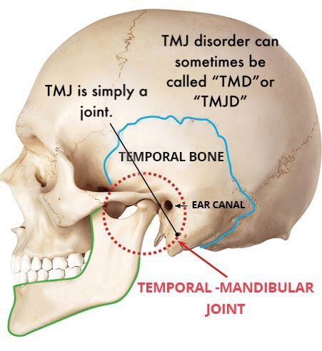 tmj mouth guard