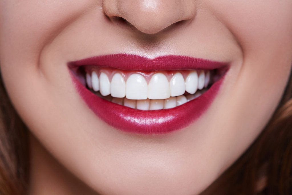 How a Whiter Smile Can Have an Effect on Makeup
