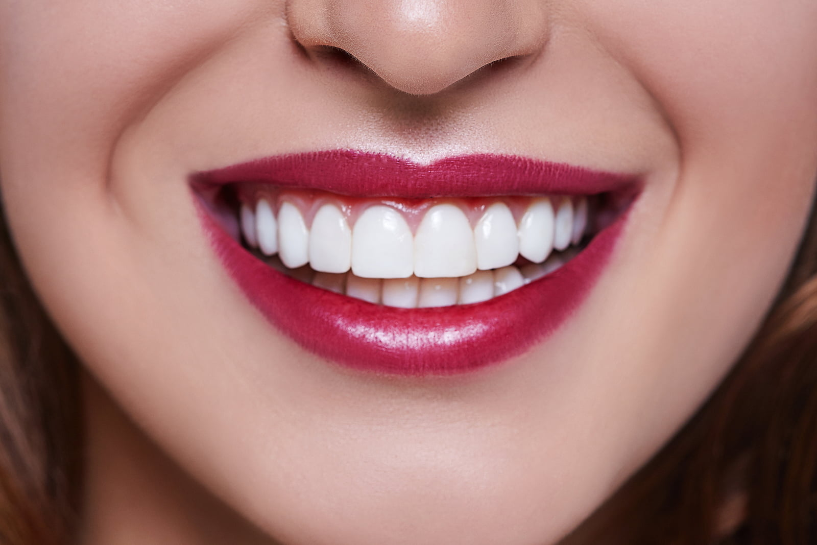 white teeth make lip color pop