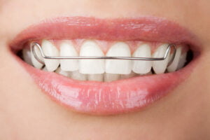 How Long Do Dental Retainers Last? | Sentinel Mouthguards