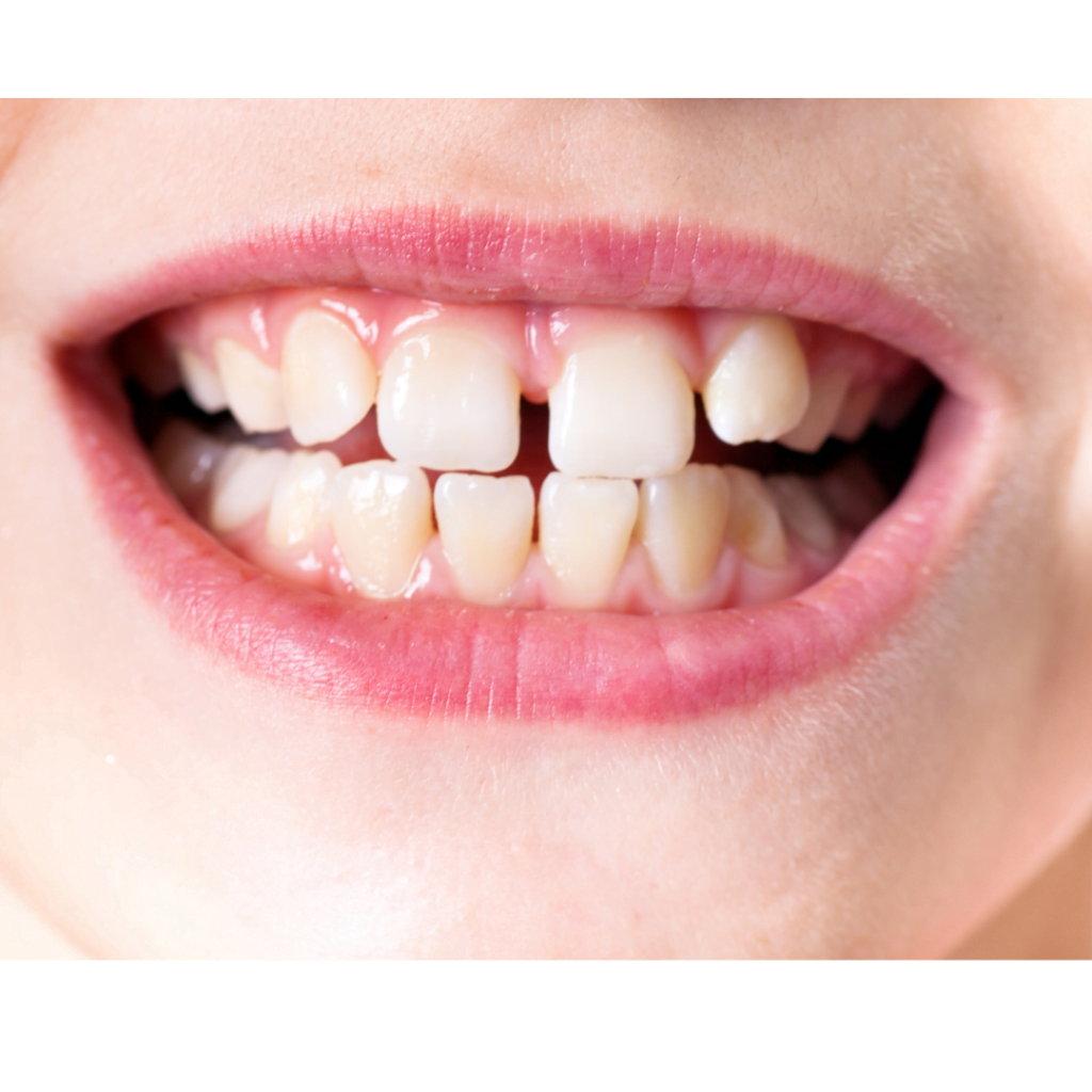 can child wear dental guard for teeth grinding