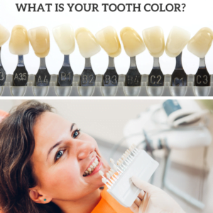 how can i get my teeth white fast